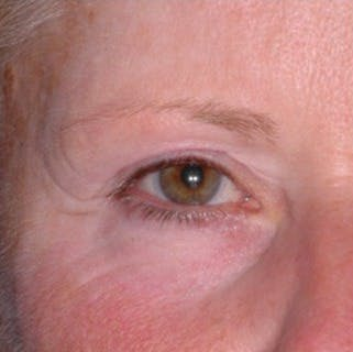 Ultherapy Gallery - Patient 39200148 - Image 1