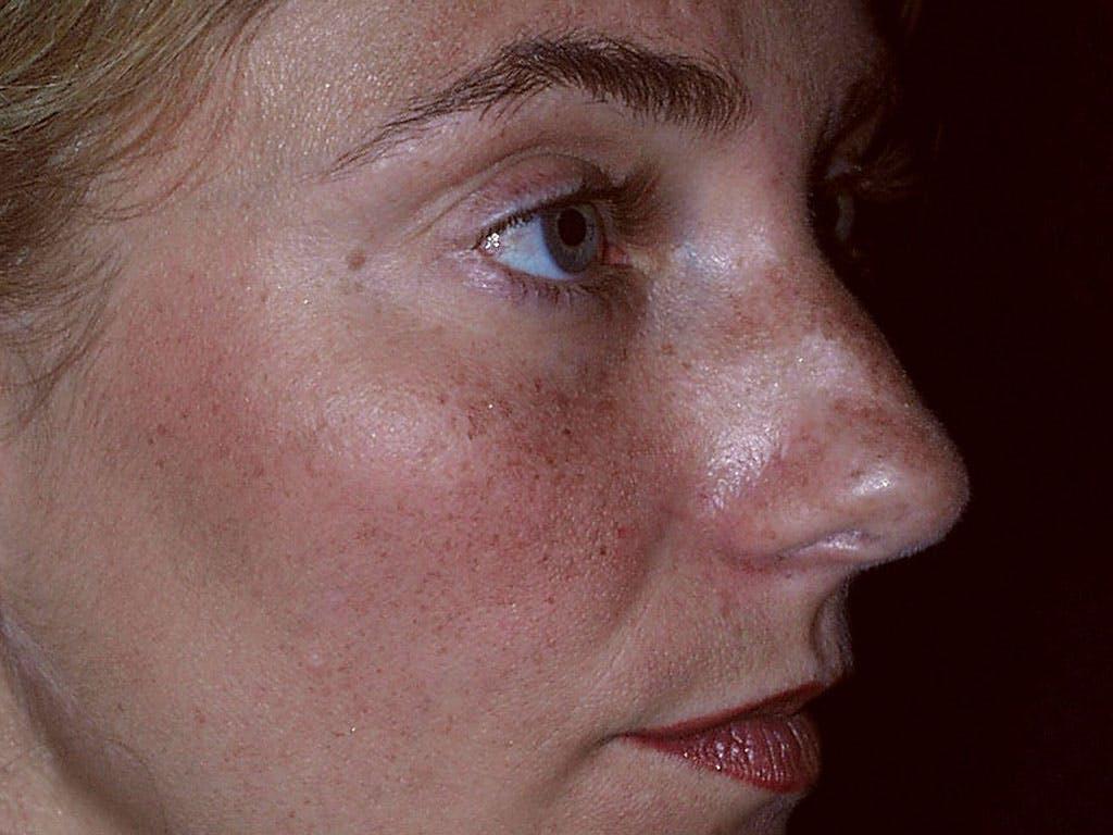 Rhinoplasty Gallery - Patient 39200152 - Image 5