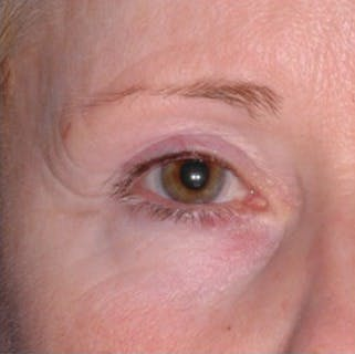Ultherapy Gallery - Patient 39200148 - Image 2