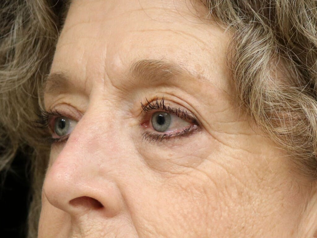 Eyelid Surgery Gallery - Patient 39200154 - Image 5