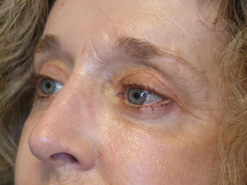 Eyelid Surgery Gallery - Patient 39200154 - Image 6