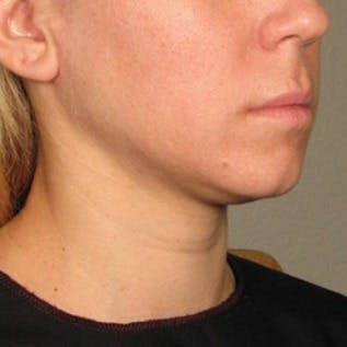 Ultherapy Gallery - Patient 39200153 - Image 1