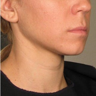 Ultherapy Gallery - Patient 39200153 - Image 2