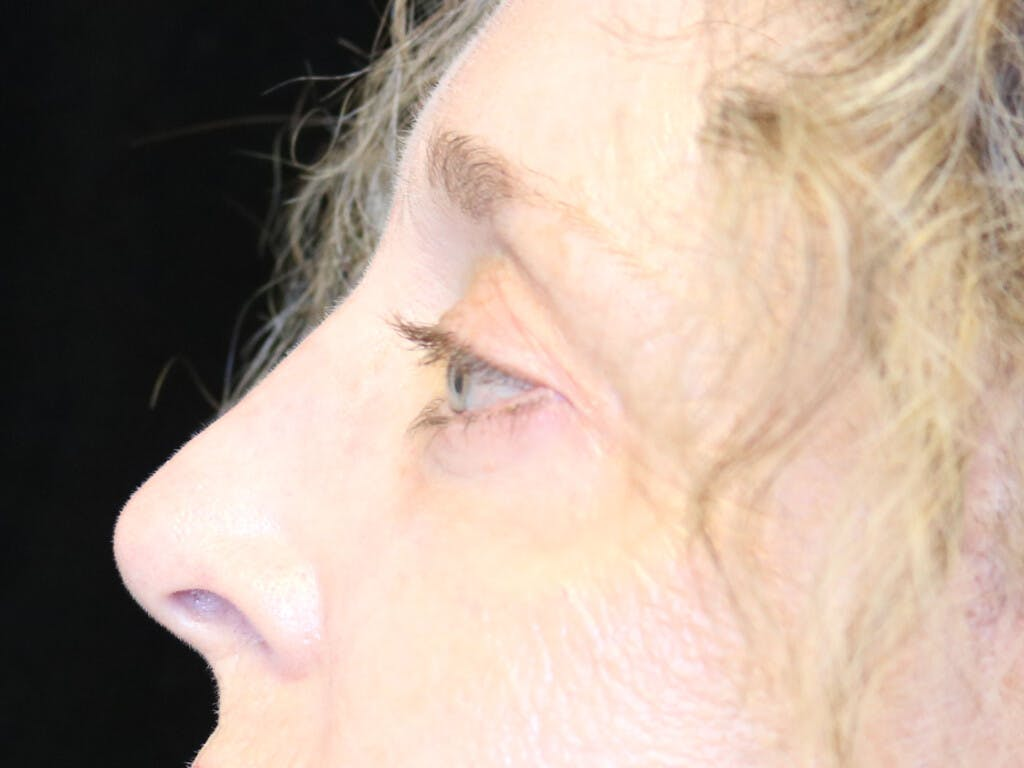 Eyelid Surgery Gallery - Patient 39200154 - Image 8