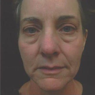 Ultherapy Gallery - Patient 39200160 - Image 1