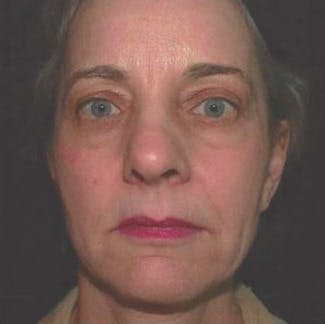 Ultherapy Gallery - Patient 39200160 - Image 2