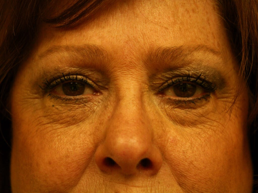 Eyelid Surgery Gallery - Patient 39200159 - Image 1