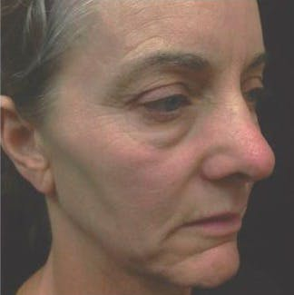 Ultherapy Gallery - Patient 39200160 - Image 3