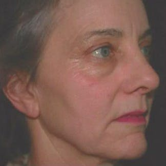 Ultherapy Gallery - Patient 39200160 - Image 4
