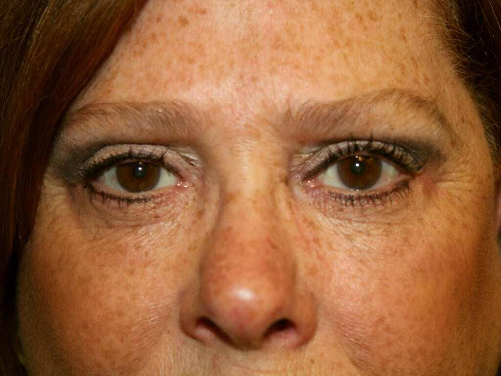 Eyelid Surgery Gallery - Patient 39200159 - Image 2