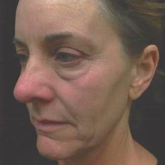 Ultherapy Gallery - Patient 39200160 - Image 5