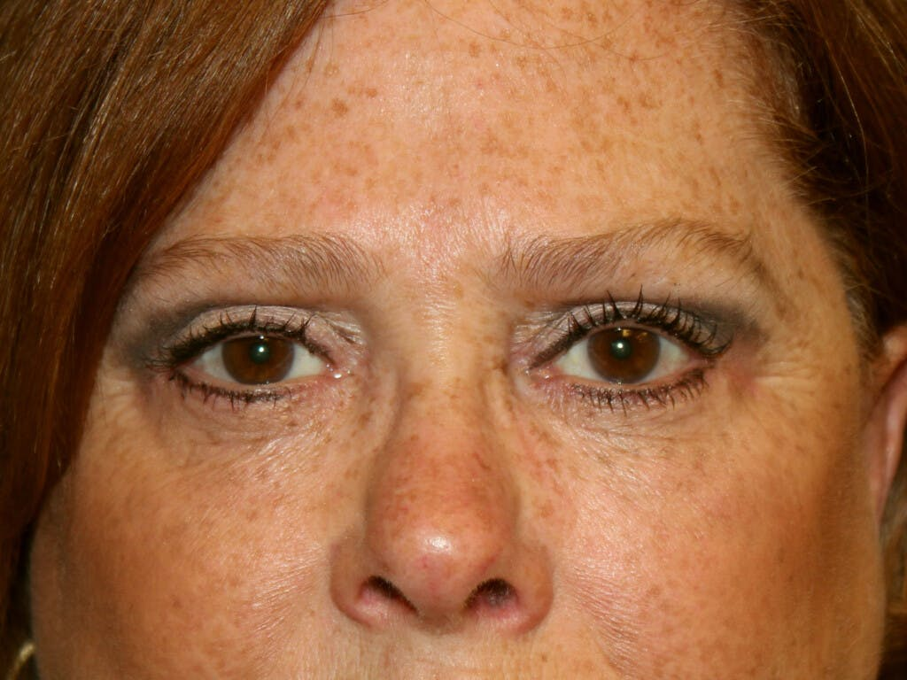 Eyelid Surgery Gallery - Patient 39200162 - Image 2