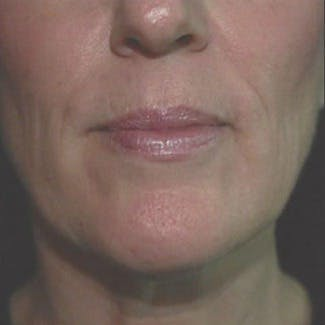 Ultherapy Gallery - Patient 39200167 - Image 3