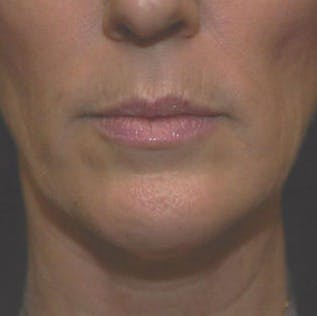 Ultherapy Gallery - Patient 39200167 - Image 4