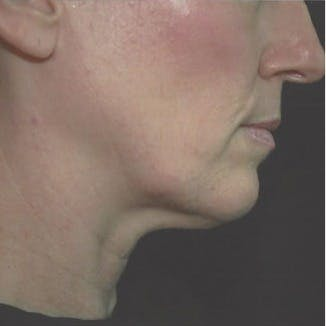 Ultherapy Gallery - Patient 39200167 - Image 5