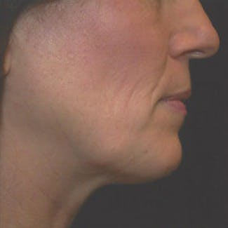 Ultherapy Gallery - Patient 39200167 - Image 6