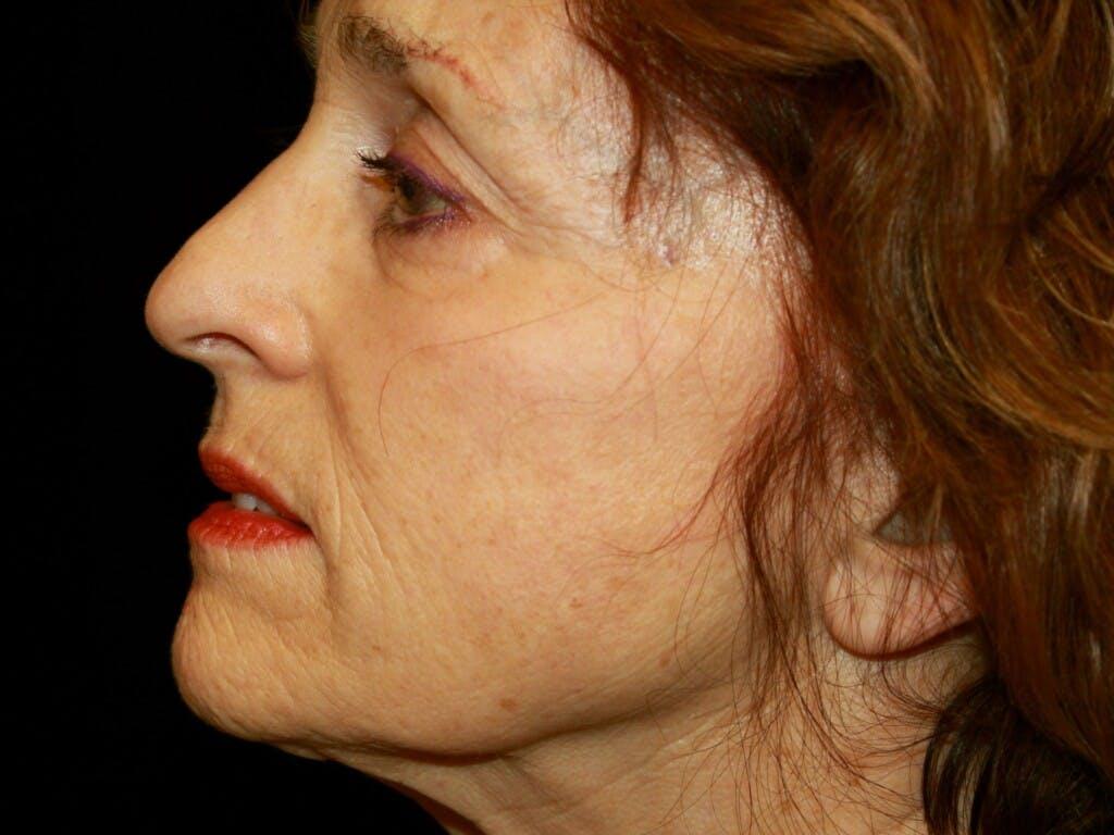 Facelift Gallery - Patient 39200170 - Image 5
