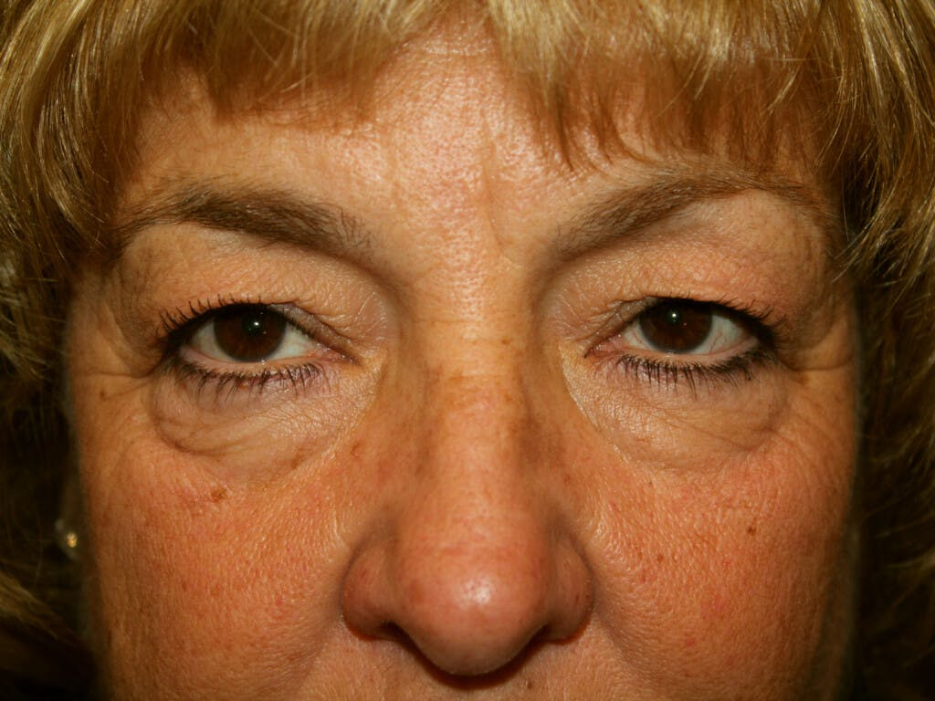 Eyelid Surgery Gallery - Patient 39200174 - Image 1