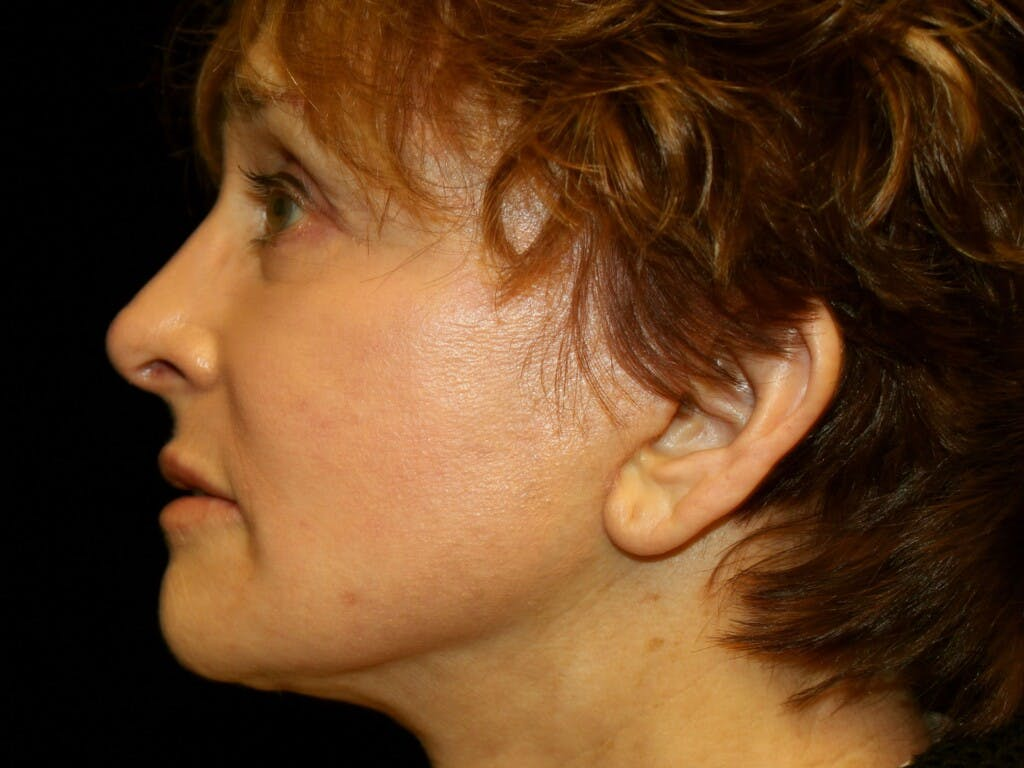 Facelift Gallery - Patient 39200170 - Image 6
