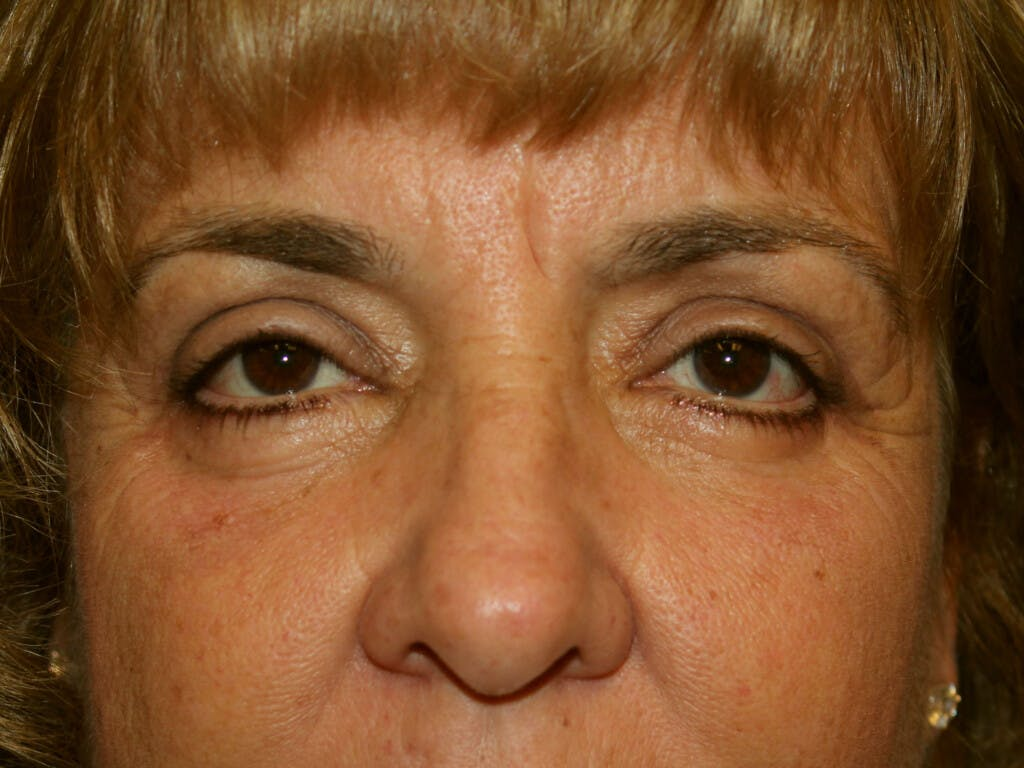 Eyelid Surgery Gallery - Patient 39200174 - Image 2