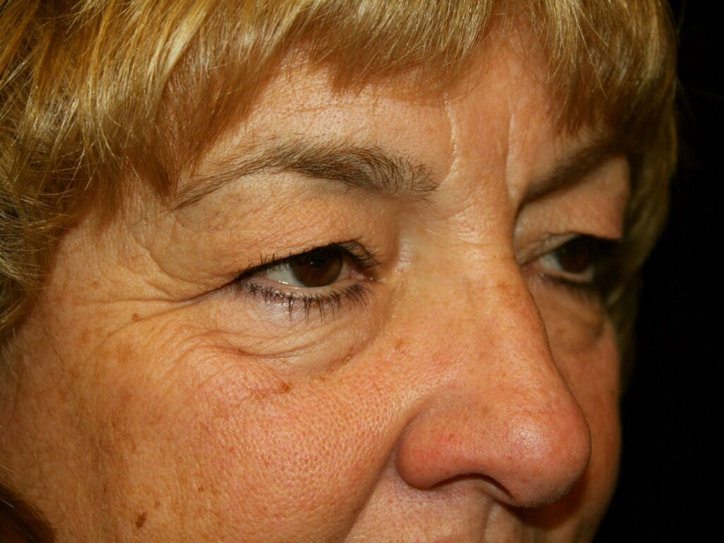 Eyelid Surgery Gallery - Patient 39200174 - Image 3