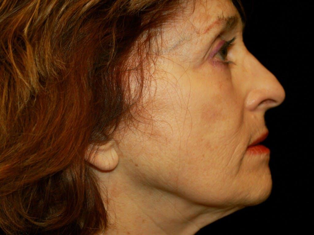 Facelift Gallery - Patient 39200170 - Image 7