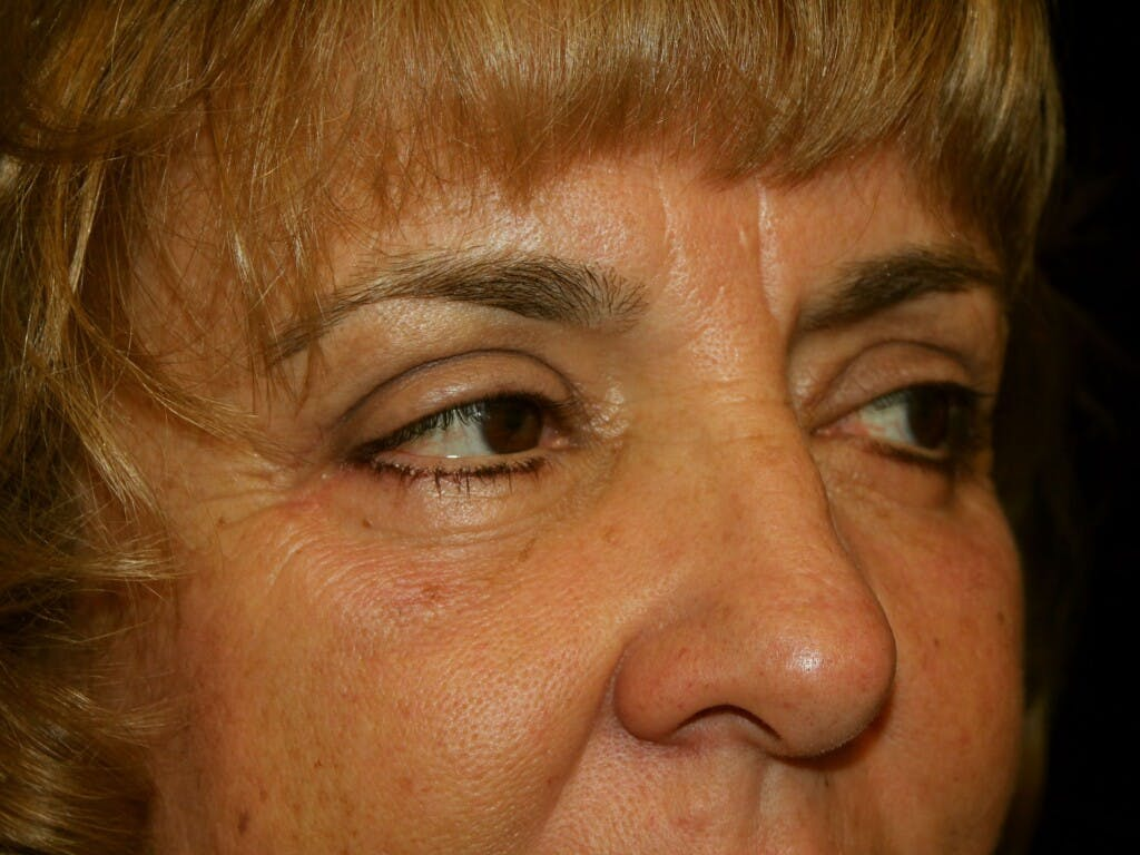 Eyelid Surgery Gallery - Patient 39200174 - Image 4