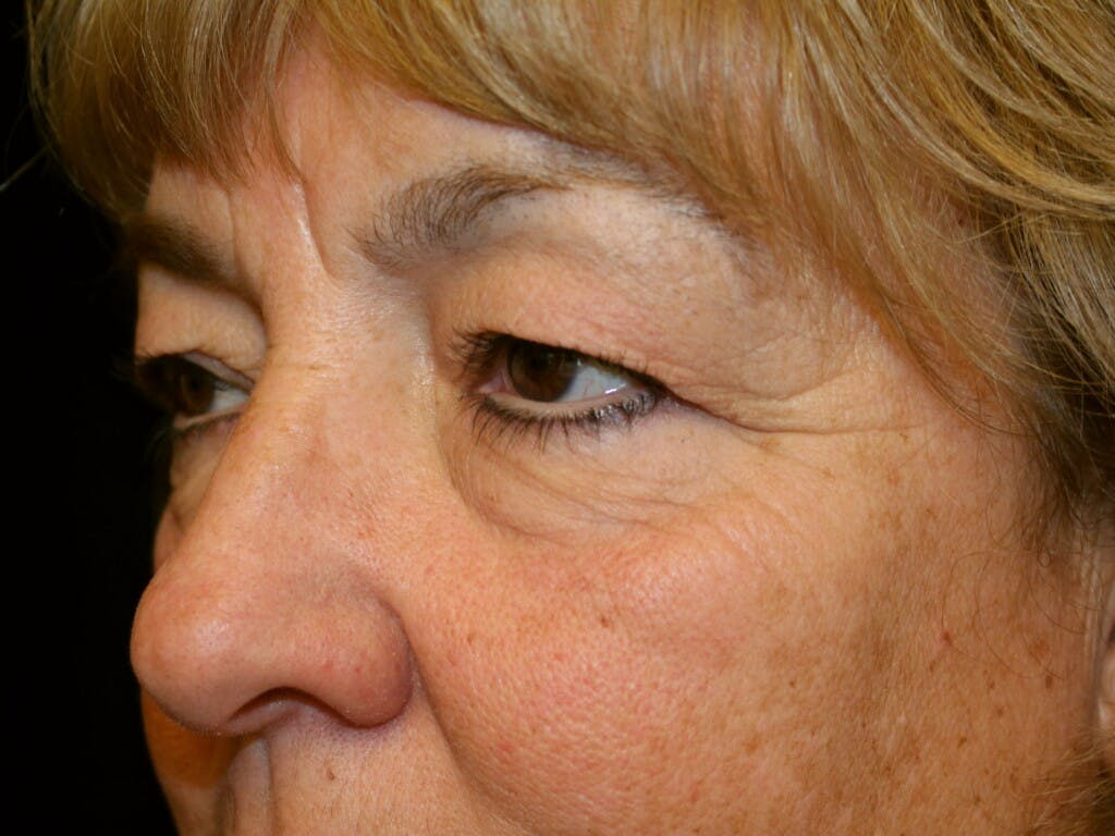 Eyelid Surgery Gallery - Patient 39200174 - Image 5
