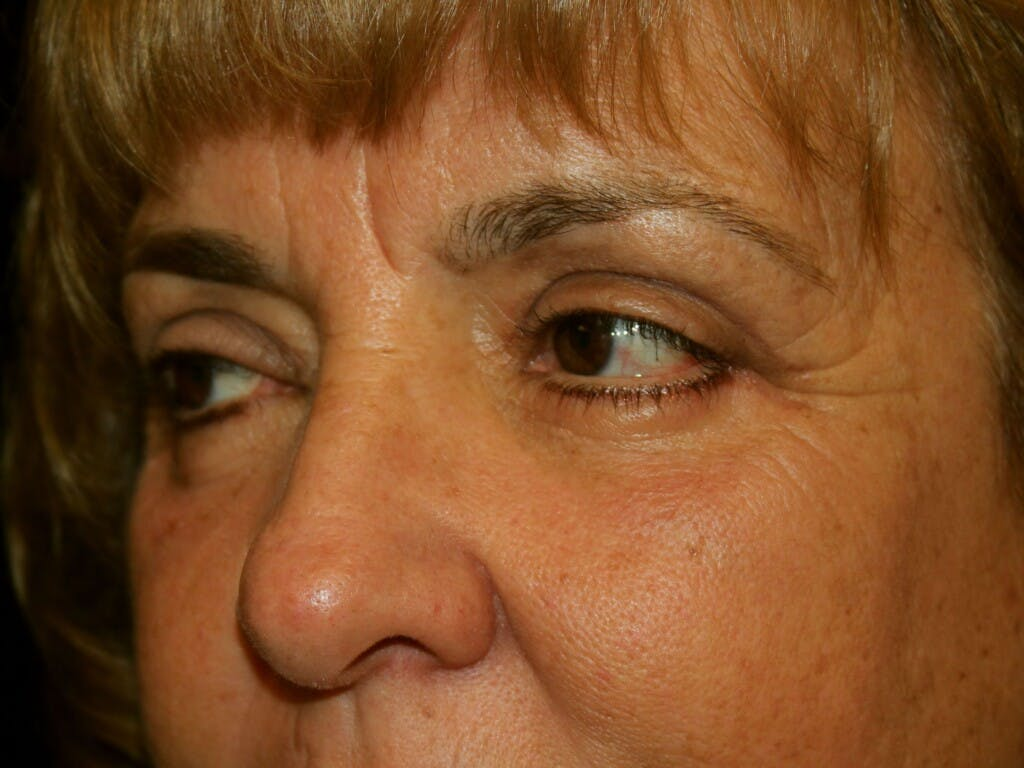 Eyelid Surgery Gallery - Patient 39200174 - Image 6