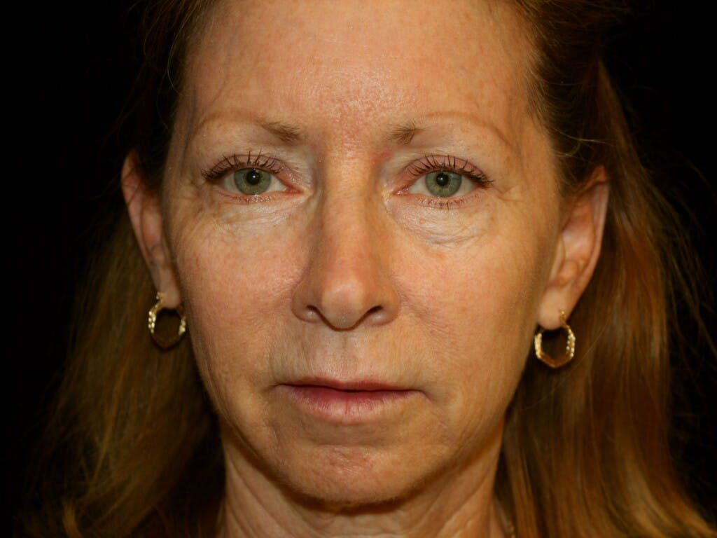 Facelift Gallery - Patient 39200184 - Image 1