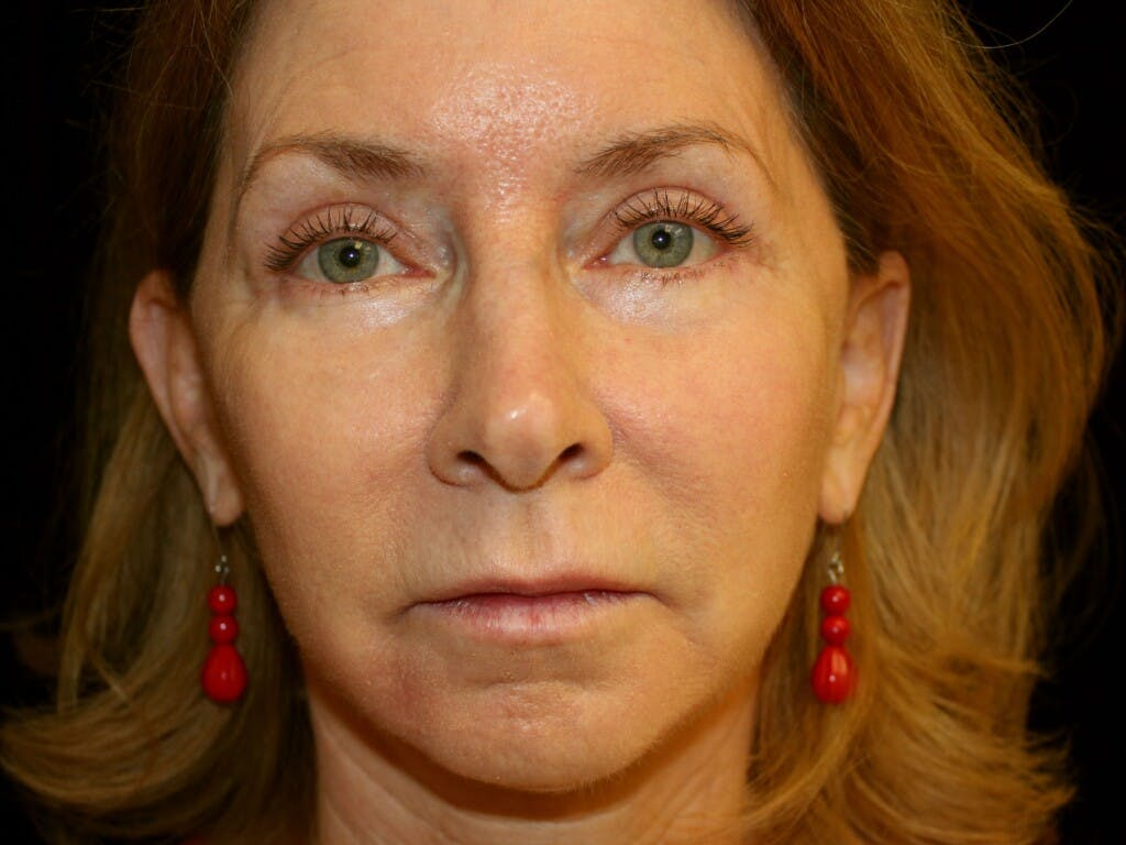 Facelift Gallery - Patient 39200184 - Image 2