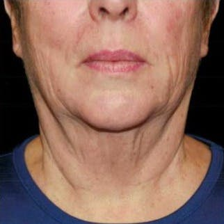 Ultherapy Gallery - Patient 39200179 - Image 1