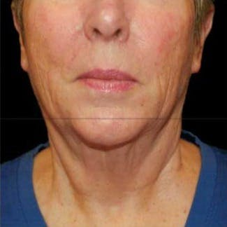 Ultherapy Gallery - Patient 39200179 - Image 2