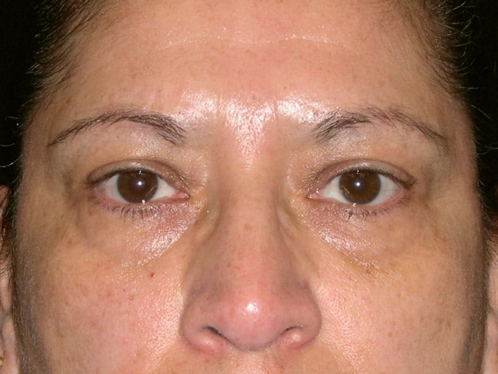 Eyelid Surgery Gallery - Patient 39200180 - Image 1