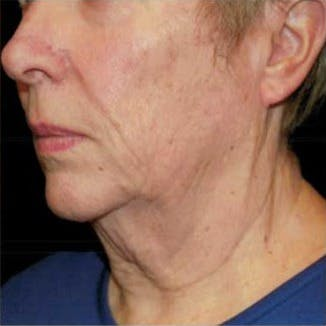 Ultherapy Gallery - Patient 39200179 - Image 3