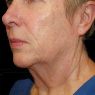 Ultherapy Gallery - Patient 39200179 - Image 4