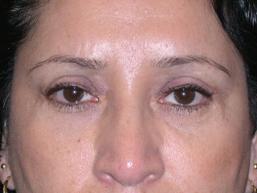 Eyelid Surgery Gallery - Patient 39200180 - Image 2