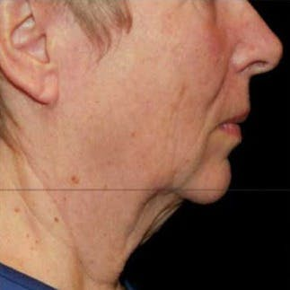Ultherapy Gallery - Patient 39200179 - Image 5