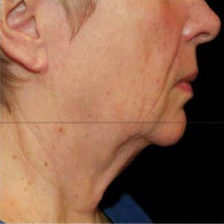 Ultherapy Gallery - Patient 39200179 - Image 6