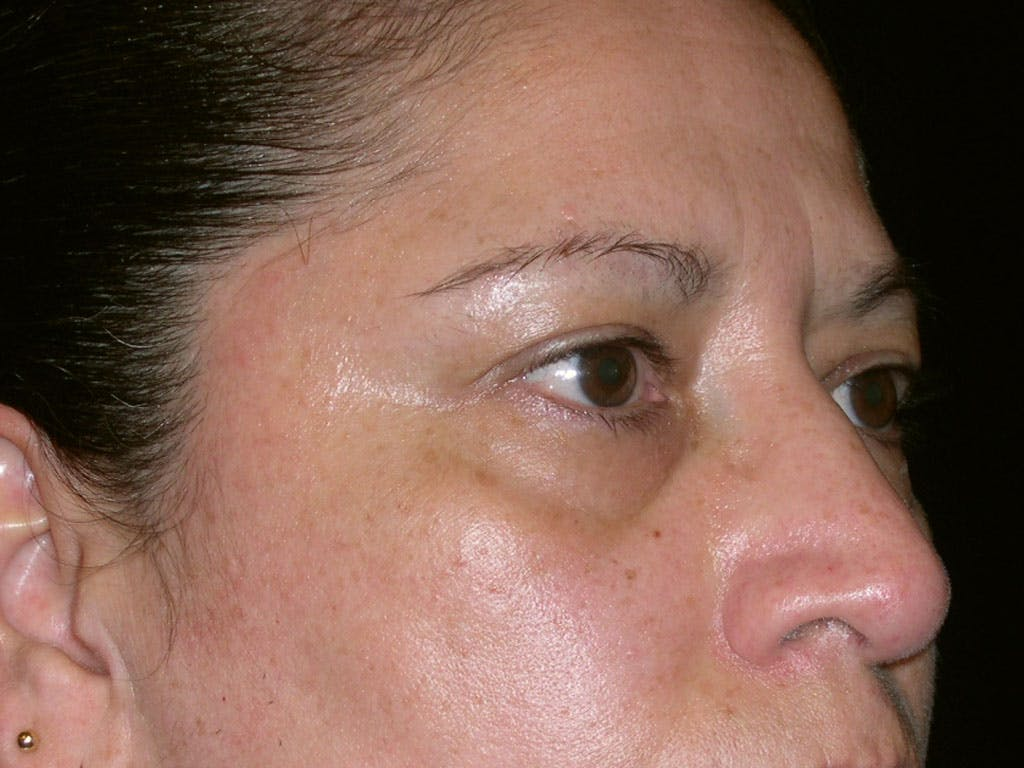 Eyelid Surgery Gallery - Patient 39200180 - Image 3