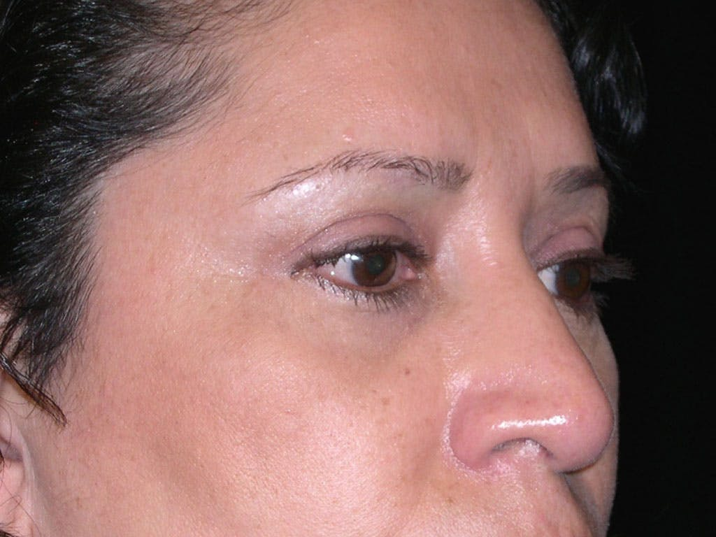 Eyelid Surgery Gallery - Patient 39200180 - Image 4
