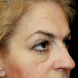 Ultherapy Gallery - Patient 39200185 - Image 1