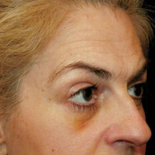 Ultherapy Gallery - Patient 39200185 - Image 2