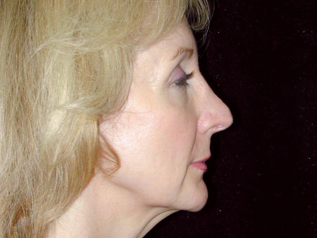 Facelift Gallery - Patient 39209072 - Image 5