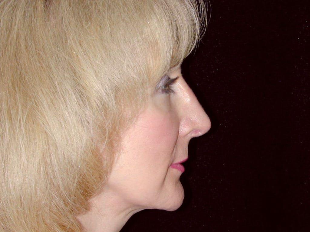 Facelift Gallery - Patient 39209072 - Image 6