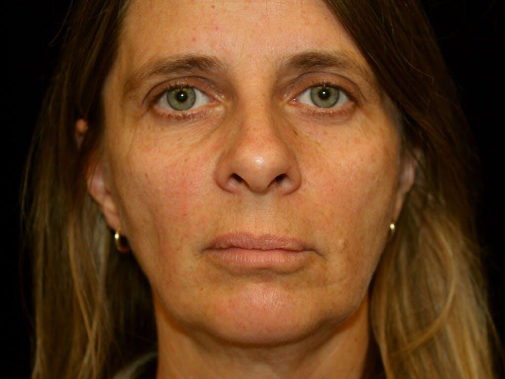 Facelift Gallery - Patient 39209079 - Image 1