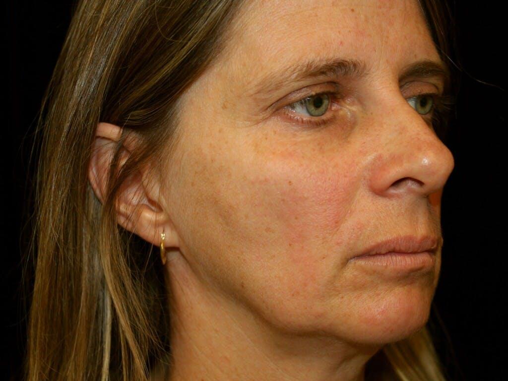 Facelift Gallery - Patient 39209079 - Image 3