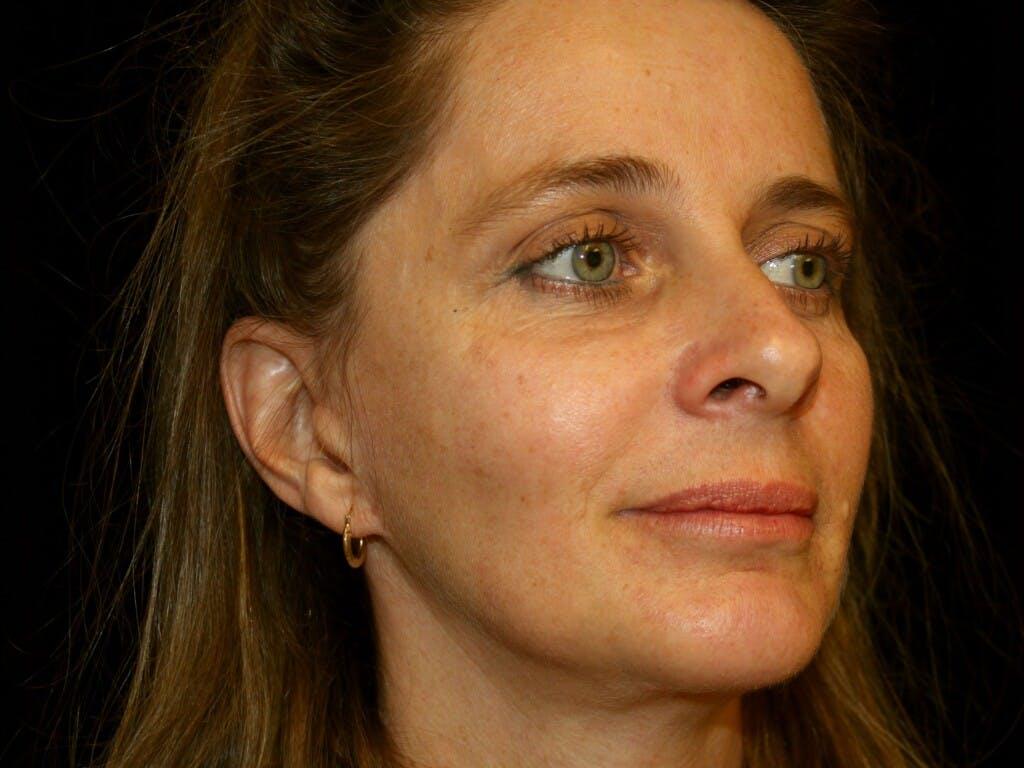 Facelift Gallery - Patient 39209079 - Image 4