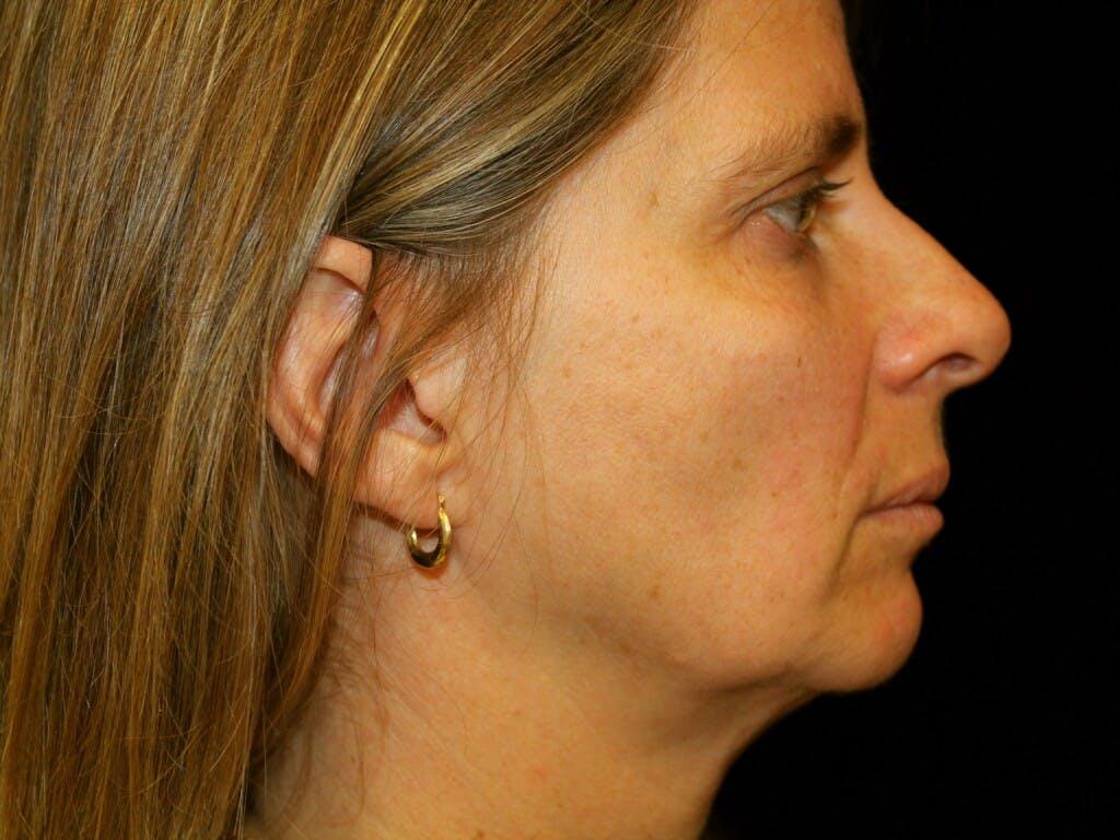Facelift Gallery - Patient 39209079 - Image 5