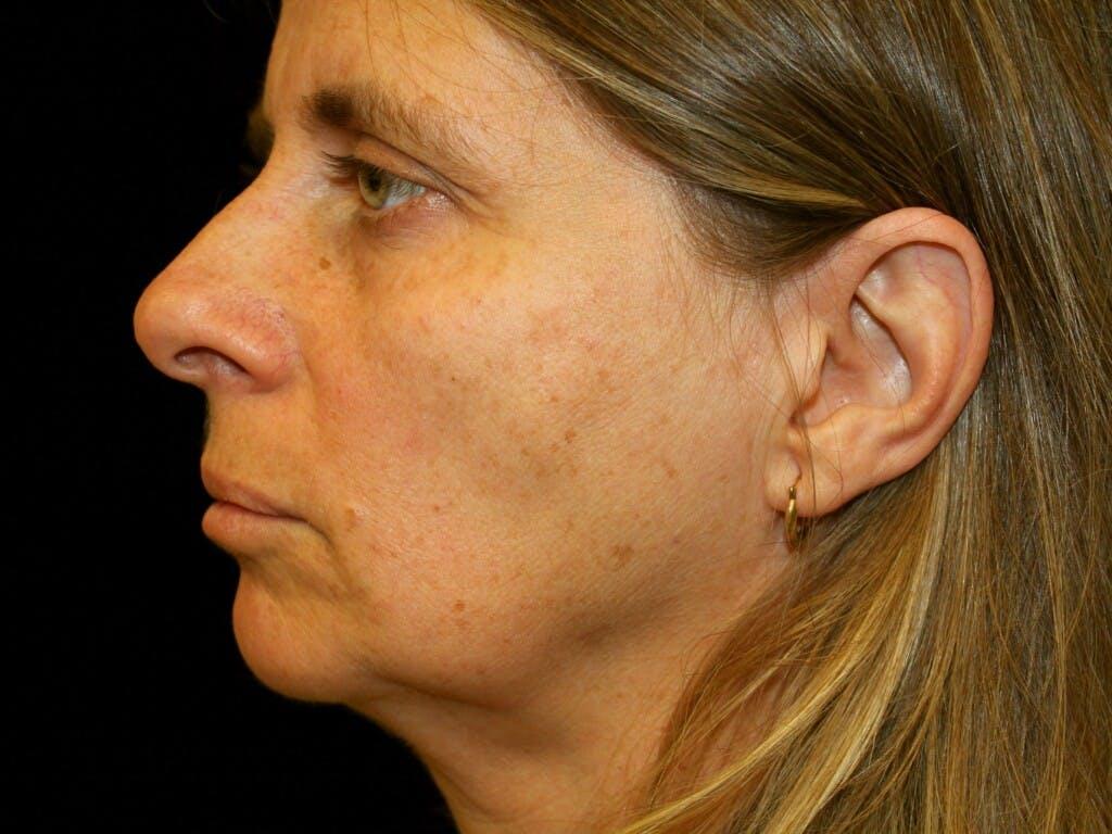 Facelift Gallery - Patient 39209079 - Image 9